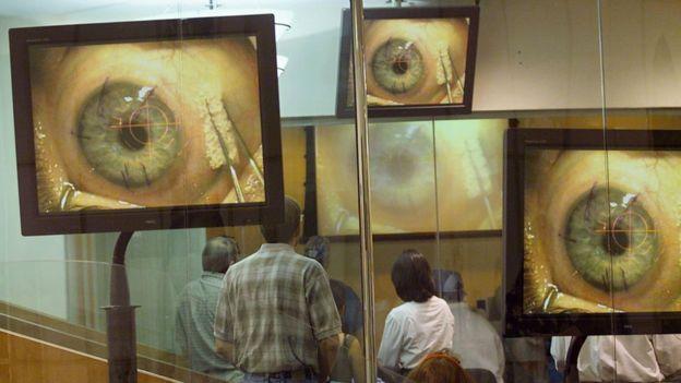TV screens showing eye surgery in progress