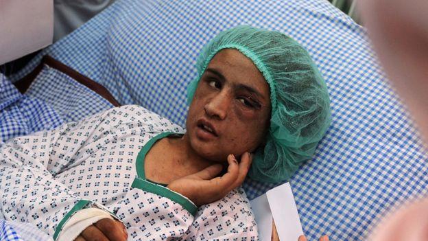 Sahar Gul, adolescente, en una cama en el hospital