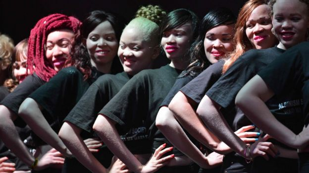 Albinos post on stage during a beauty pageant in Nairobi, Kenya - Friday 21 October 2016