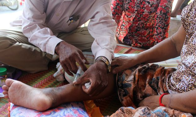Man giving woman injection