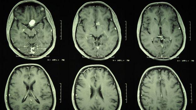 Tomografia de um cérebro