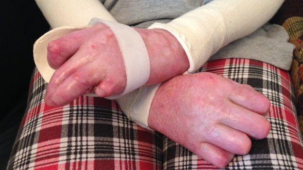 Catrin's hands