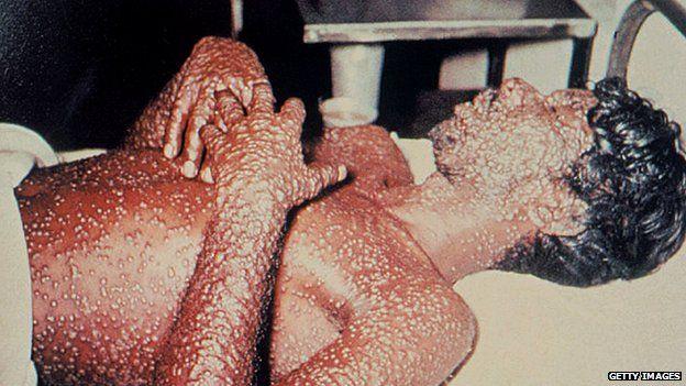 Man with smallpox