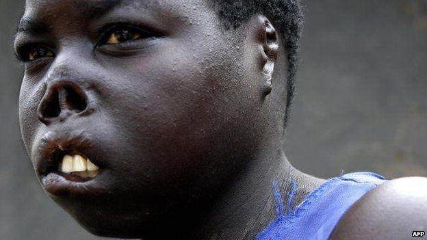 Auma Consolata, a former abductee of the Lord's Resistance Army, bears the scars of her encounter with the rebels who cut off her lips, nose and ears before she was able to escape back to her family (2 September 2006)