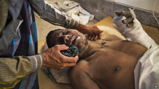 One worker receives treatment after Bangladesh building collapse - March 12, 2015
