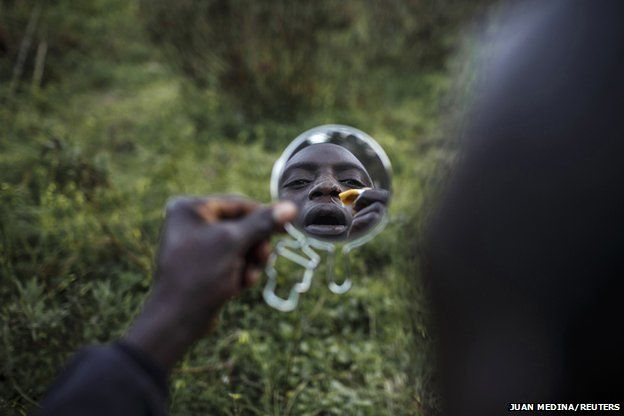 Mohamed from Togo heals wounds suffered while trying to swim from Morocco to Spain at his hiding place in the mountains near Spain's North African enclave of Ceuta, February 26, 2014