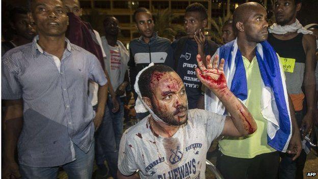 Wounded Ethiopian Israeli