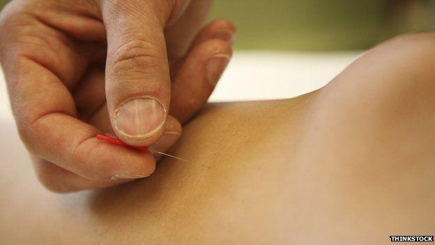 Acupuncture close-up