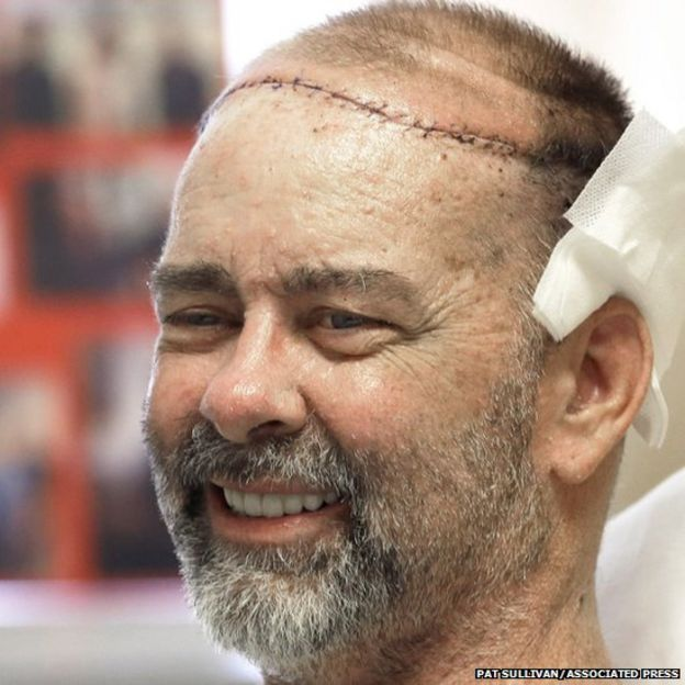 The first skull and scalp transplant has been performed in a 15-hour operation, say doctors in the US.