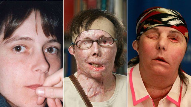 Carmen Blandin Tarleton shown before the attack (l), after the attack (m), and after her face transplant (r)