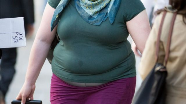 Obese patients 'surgery ban' in York to be reviewed