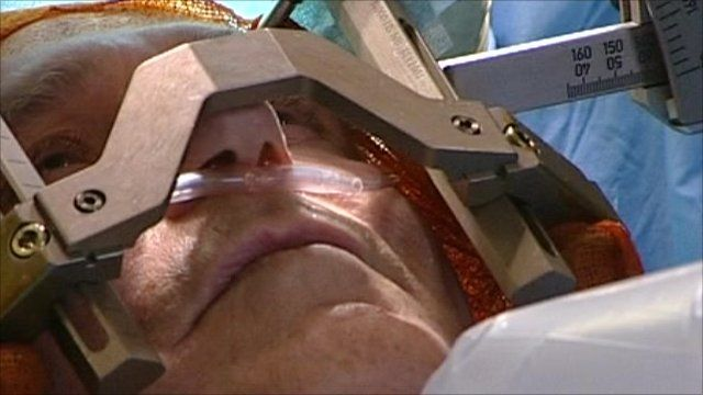 Deep brain stimulation treatment