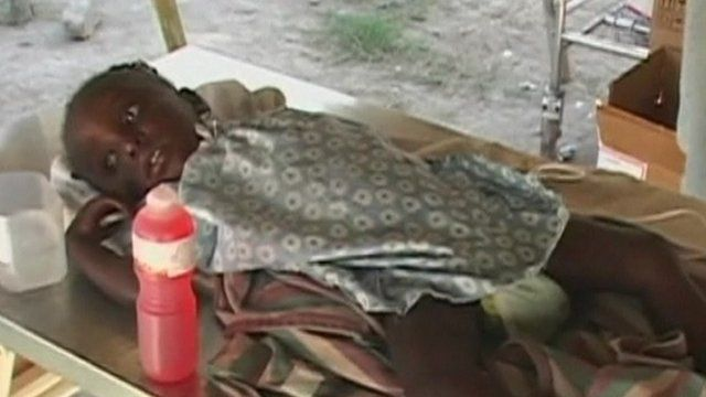 A young girl with cholera