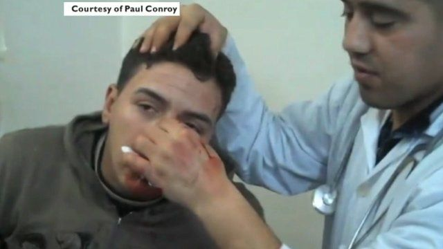 A man being treated in a clinic in Homs