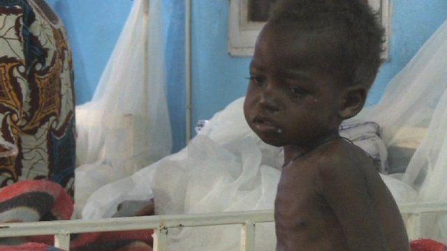 Malnourished child in Niger
