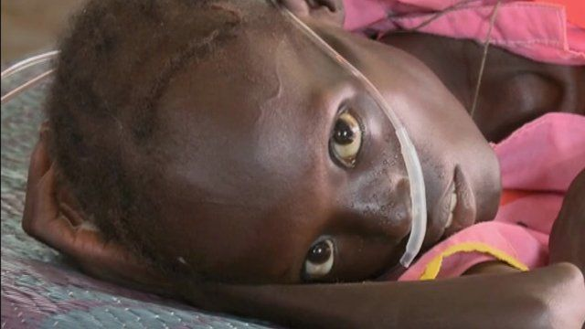 A young Sudanese girl suffering from malnutrition