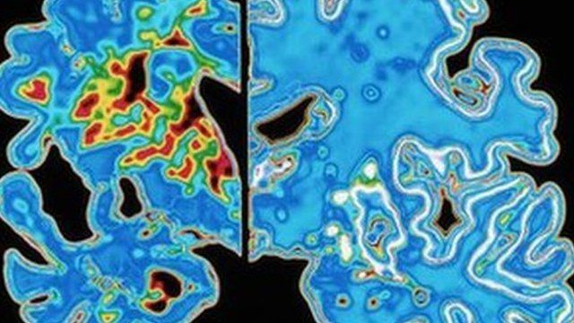 Computer graphic of a vertical (coronal) slice through the brain of an Alzheimer patient (at left) compared with a normal brain (at right).