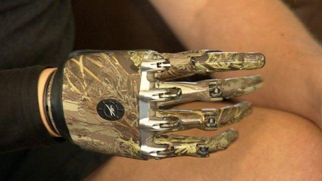 Mike Swainger's bionic hand
