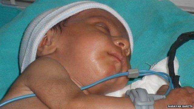 Baby Damini in the hospital