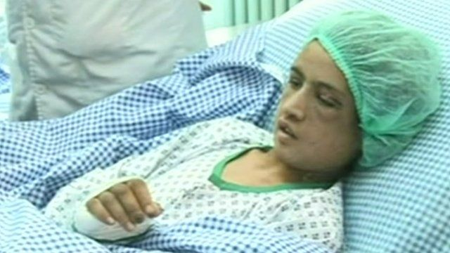 Abuse victim Sahar Gul in a hospital in Kabul