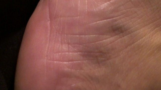Skin with potential bed sore