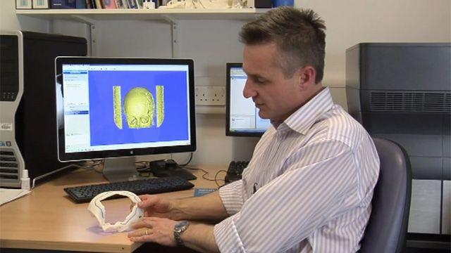 Prosthetist Stefan Edmondson
