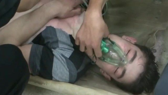 Victim of alleged chemical attack near Damascus