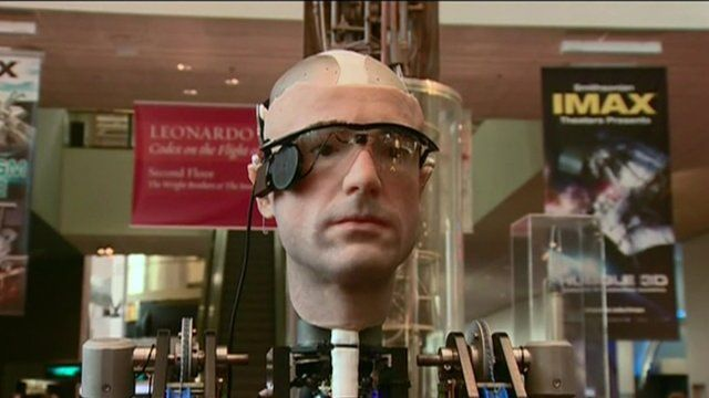 'Frank', the world's first bionic man