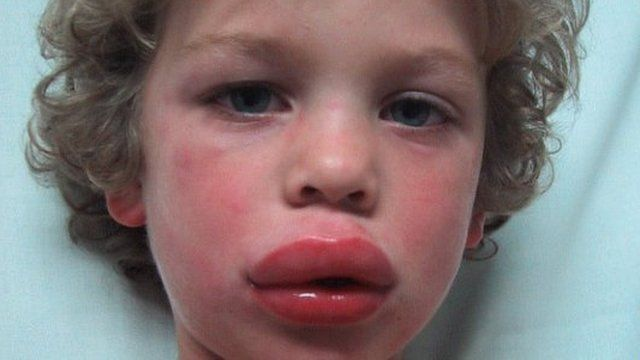A young boy having an anaphylactic reaction