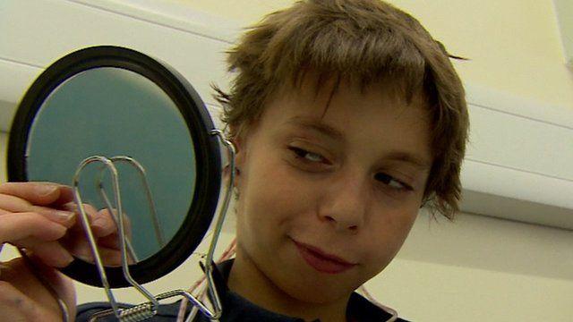 Kieran examines his new ears