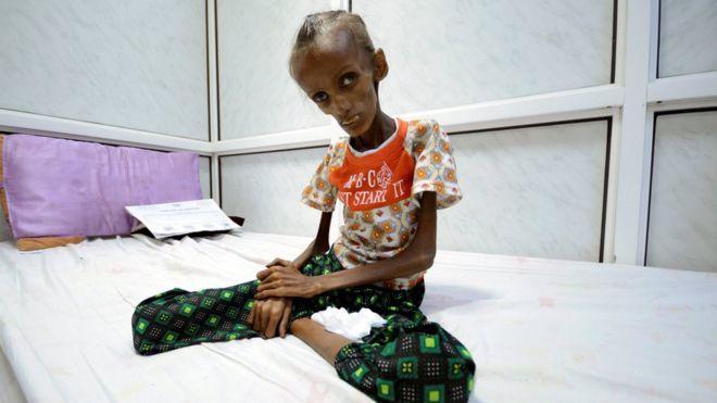 Saida Ahmad, sentada na cama do hospital em Sana'a