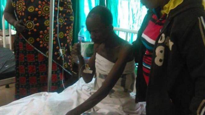 A miner in hospital in western Tanzania (17 November 2015)