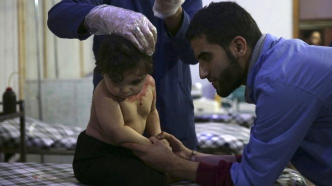 An injured child in a field hospital in Damascus in November, 2015