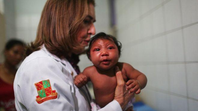 Doctora con un niño con microcefalia.