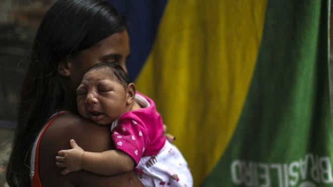 Bebê com microcefalia