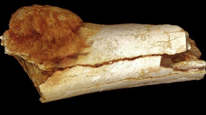 The earliest evidence of cancer in the human fossil record has been discovered in a cave in South Africa, an international team of scientists say.
