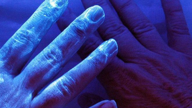 Unas manos vistas con luz ultravioleta