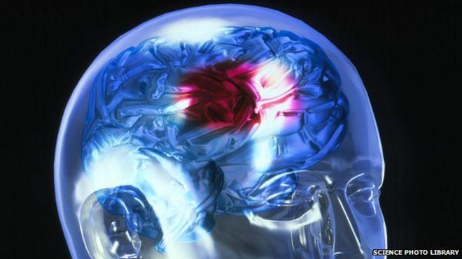 Resultado de imagen de stroke