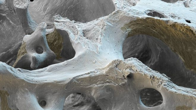Osteoporotic bone, coloured scanning electron micrograph