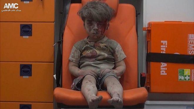 Imagem do menino foi captada após resgate em prédio bombardeado em Aleppo (Foto: AMC)
