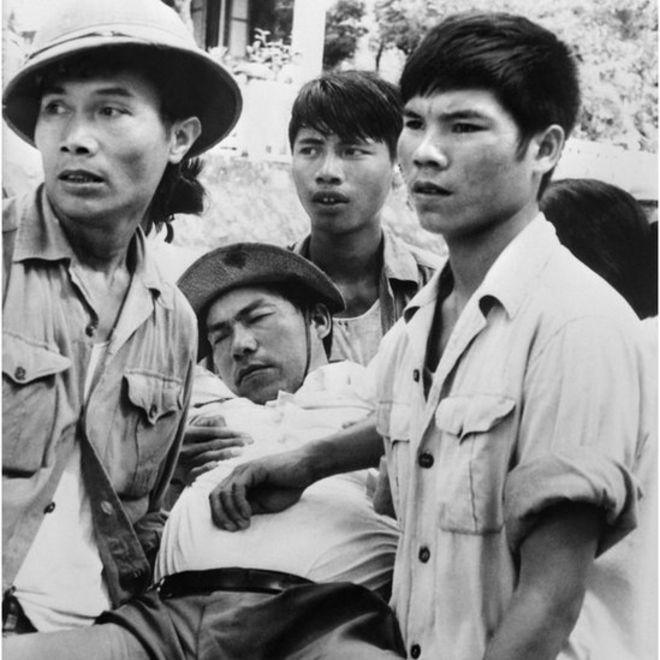 在戰爭爆發前,中越兩國關係極為緊張,頻繁發生邊界武裝衝突。圖為一名越南攝影記者在友誼關被毆打受傷。(攝於1978年2月9日)