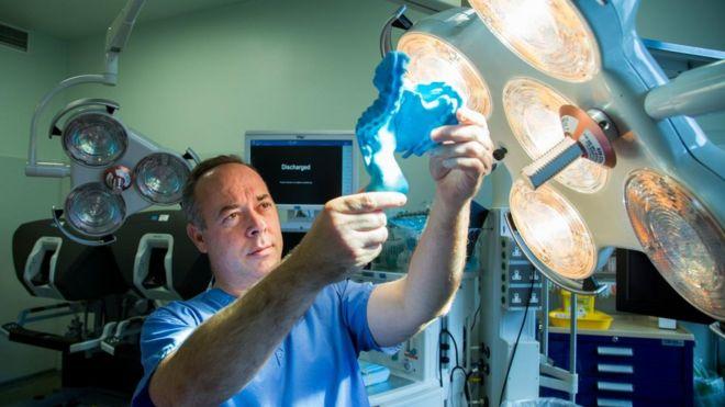 J. Calvin Coffey en el quirófano con un modelo plástico del mesenterio en la mano