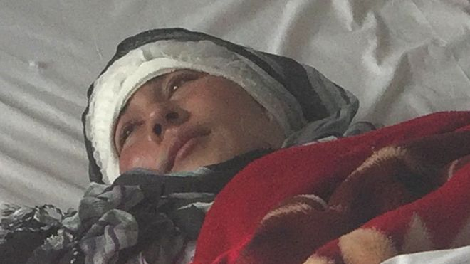 Zarina recovering in hospital (01 February 2017)