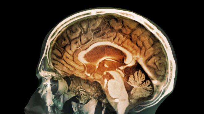 Ultimos Avances en Ciencia y Salud - Página 27 _91032143_c0180637-human_head_mri_and_3d_ct_scans-spl