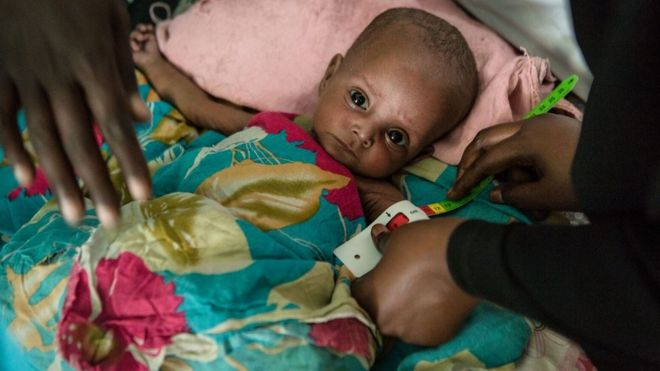 A six month old baby in Somalia
