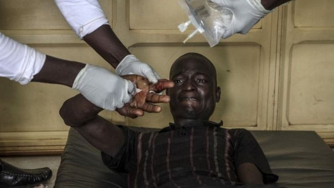 A wounded man is treated at the General Hospital in Bangui on September 26, 2015