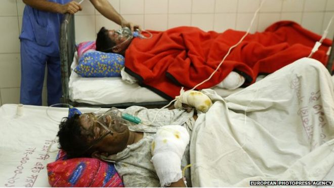 Fire victims are given medical treatment at the Dhaka Medical Hospital after suffering severe burns when unidentified people threw a hand-made petrol bomb at a bus, in Dhaka, Bangladesh, 3 February 2015