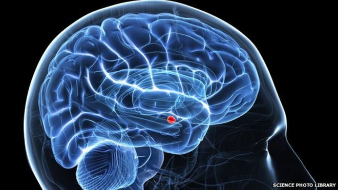 People with autism have less activity in the amygdala (shown in red), which helps process emotions