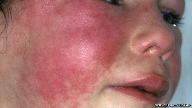 Scarlet Fever In Pregnant Women 58