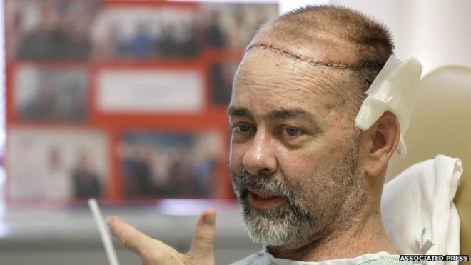 James Boysen received a skull and scalp transplant